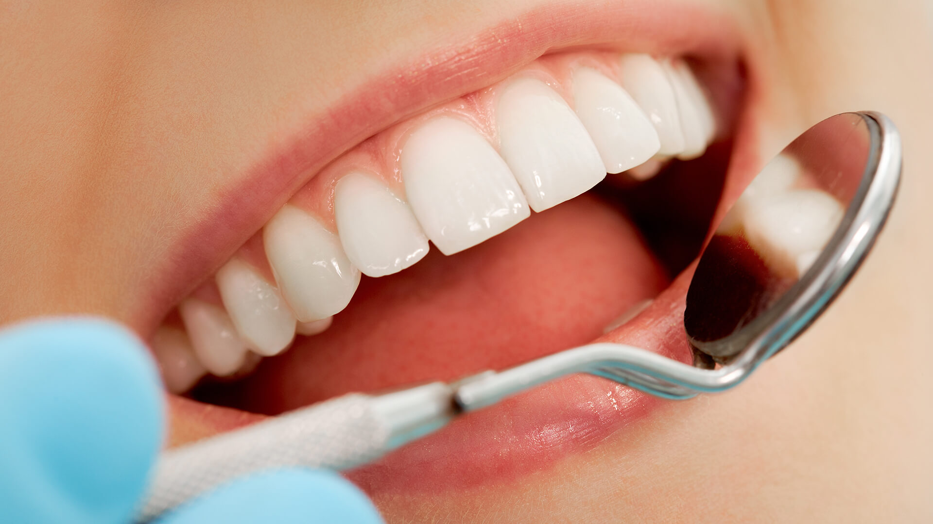 10 Ways to Keep Acid Reflux From Damaging Your Teeth